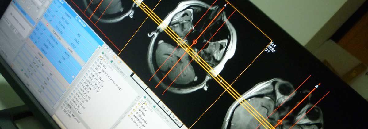 cosa la risonanza magnetica multiparametricadella prostata con mdc para